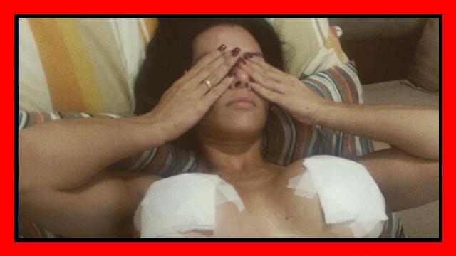 Incidente da pole dance per la star latina: esplodono le protesi